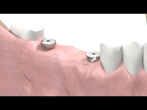 SIC invent Dental Implant - Prosthetic Animation: Bridge-Work (Open Tray Technique)