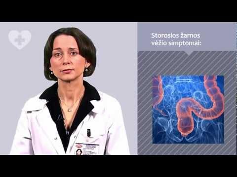 Tiksli storosios žarnos vėžio diagnostika