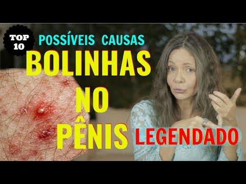 Cum se vindecă pe penis
