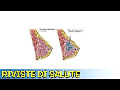 Fisioterapia durante lartroplastica dellanca