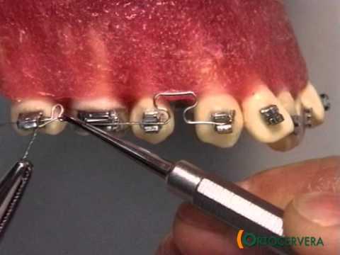 ORTOCERVERA / Ortodoncia: Arcos Seccionales Acero