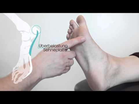 Die Valgusdeformation des kleinen Fingers des Fusses die Behandlung