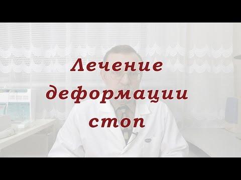 Pizzicamento del nervo mediano della spalla