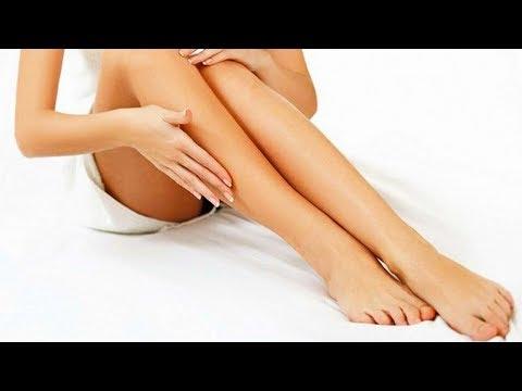 Вены на ногах что делать? Как лечить варикоз в домашних условиях. Сильнейший рецепта с имбирем