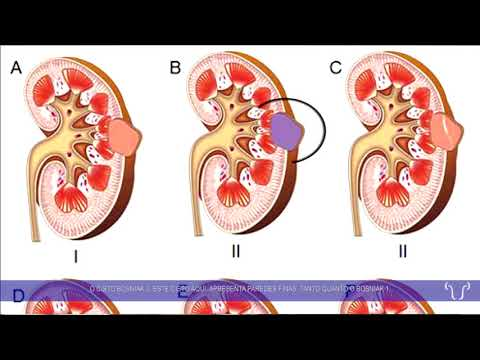 Cardíaca hipertensiva o que significa