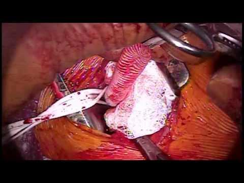เส้นเลือดตีบด้านล่างภายใน