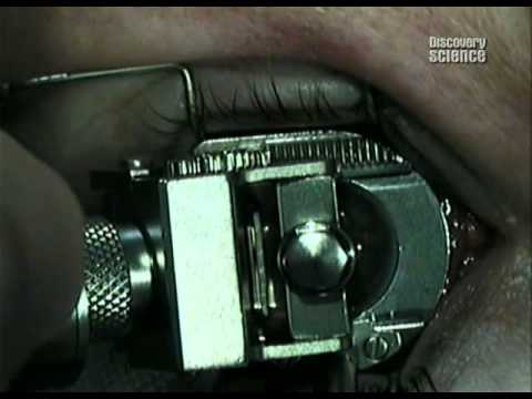 Лечение гипергидроза лица ботоксом