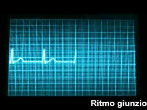 Protocolli per assistere a ipertensione