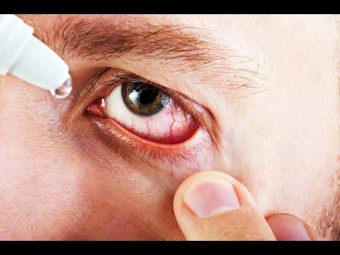 Как снять отек над глазом после удара
