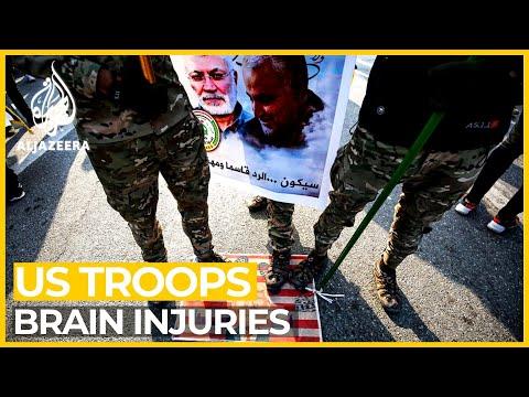 Analysis: 50 US troops face brain injuries after Iran strikes