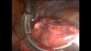 Lung Resections with the Curved Radial Reload Stapler (224)