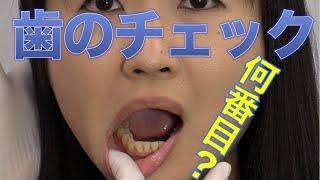 口腔内チェックでは真っ先に歯の状態を見る?