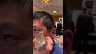 Dean Takahashi gets the Opte treatment on his face