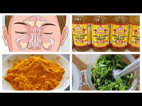 Video Best Natural Home Remedies for Sinusitis | Natural Cures