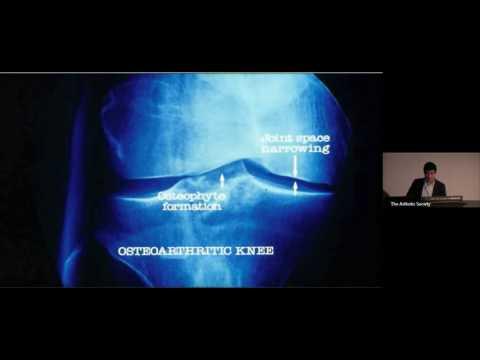Rheumatoid arthritis hogyan kezelhető vélemények