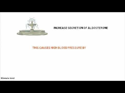 Stade de lhypertension 3 3 risque, il