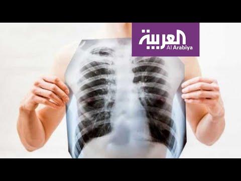 العرب اليوم - شاهد: الفرق بين الالتهاب الرئوي بسبب