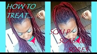 scalp sores scabs treatment - Free video search site - Findclip Net