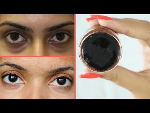 Dark circles sa ilalim ng mata sa 17 taon