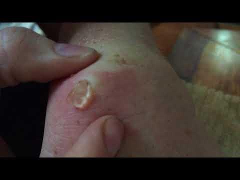 Ausgeprägte Arthrose des Schultergelenks