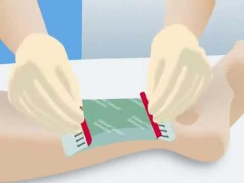 Chirurgiczne usunięcie zakrzepów w żyłach nóg