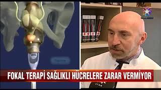 Fokal Tedavi - EURO Star 'Ana Haber'