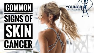 Common Signs of Skin Cancer