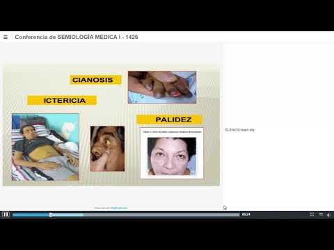 Manifestări ale varicozei