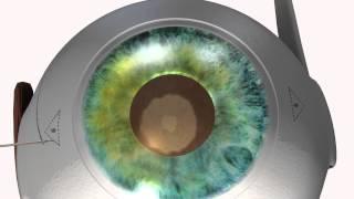 Nueva tecnica quirúrgica diseñada por el Doctor Ignasi Jürgens - ICR - Institut Català De Retina