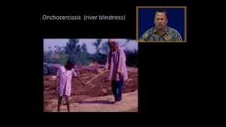 onchocerciasis (river blindness)