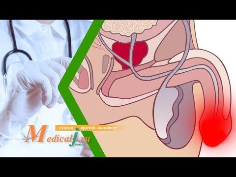 Лечение простатита в красноярске клиника