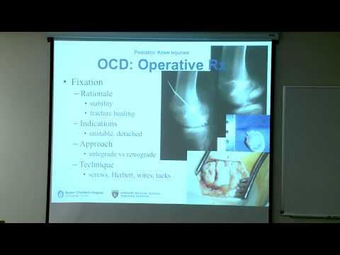 Knie Dysplasie ICD-10 Code