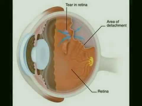 Eye Floaters or Muscae volitantes Homoeopathic Cure
