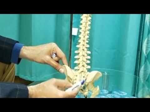 helmintikus terápia ankylopoetikus spondylitis