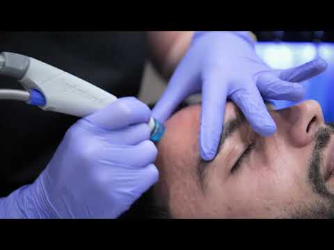Procedure demonstration at Medaesthetics - Medaesthetics