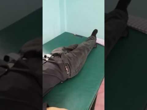สิ่ง ploskovalgusnaya เท้าผิดปกติ