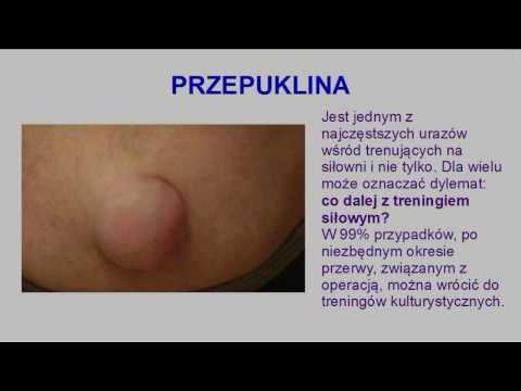 Choroba hydatid w mięśniach