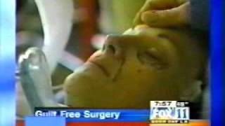 Beverly Hills Plastic Surgery News | Guilt-Free Facelift