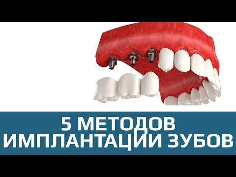 Имплантация зубов. 5 методов имплантации зубов
