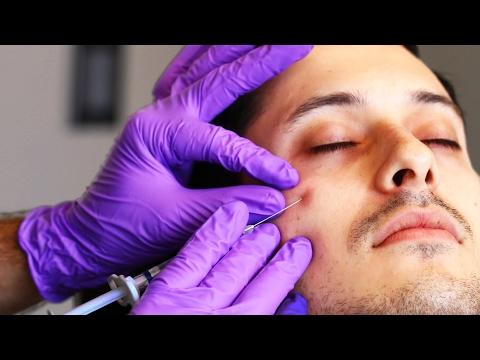 Kung injections ng kagandahan kapag ang tiroydeo