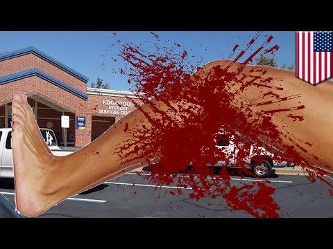 กระเป๋าเงินของคนเลี้ยงแกะมีเส้นเลือดขอด