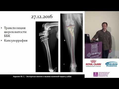 Карелин М. С. - Хирургическое лечение медиального вывиха надколенника, ассоциированного с ДТБС