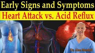 Identifying Heart Attack vs. Acid Reflux (GERD) Early Warning Signs & Symptoms - Dr. Mandell, DC