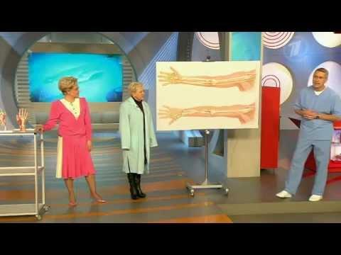 Эндопротезирование суставов колена