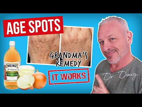 Photorejuvenation para sa mga spot edad