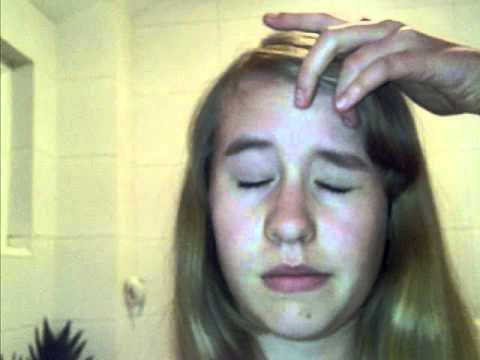 Worms maging sanhi ng acne sa iyong mukha