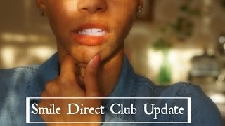 Smile Direct Club Update  Retainers? Teeth Shifting Back?