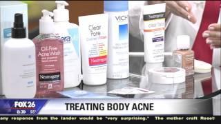 Dr. Sherry Ingraham on Treating Body Acne  (Bacne)