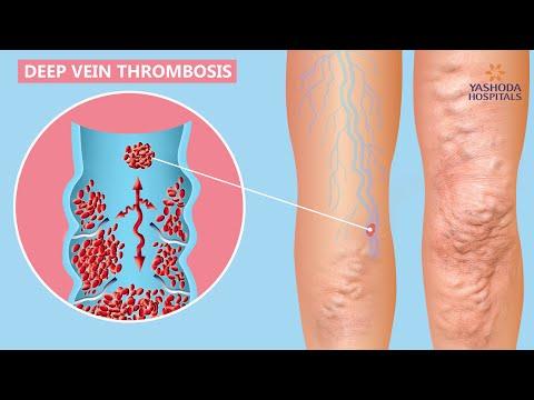 Exerciții care participă la vene varicoase