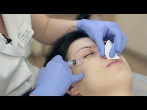 Биоревитализация:  как проходит процедура